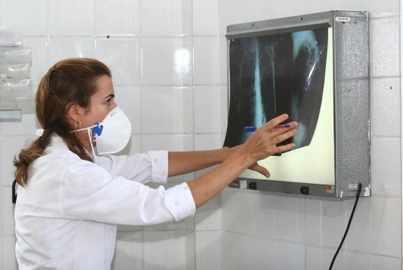 Incidência de tuberculose no Brasil em 2014 foi 33,5 casos por 100 mil habitantes. (Foto: Agecom Bahia)
